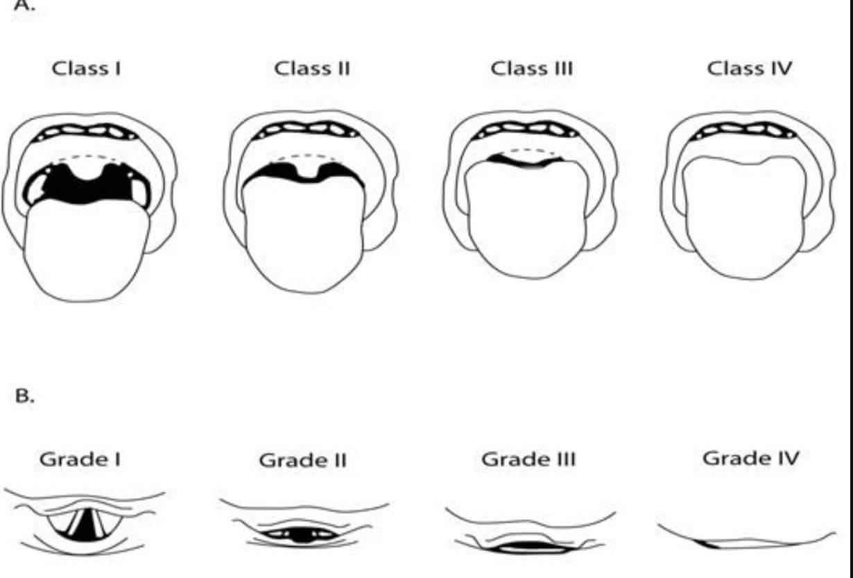 Mallampati/ Cormack-Lehane – BoA.coach – Basics of Anaesthesia